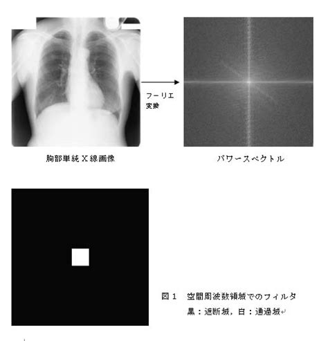 Lee's HP in Niigata University: 医用画像情報学 (Medical Image Information)